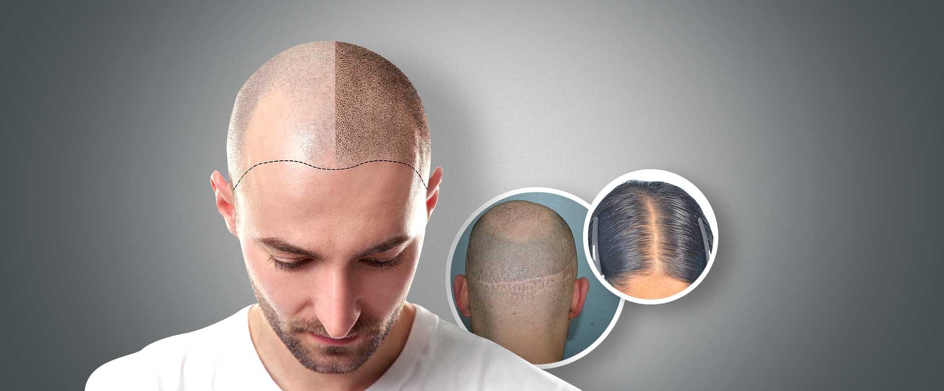 Scalp Micropigmentation India Hair Loss Treatment Clinic